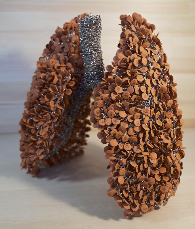 iPSパーツ〜肺